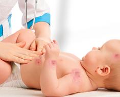 Pemahaman Alergi dan Sumber Allergen yang Kurang Banyak Diketahui